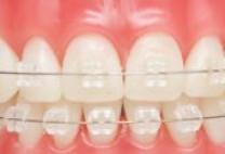 Rất nhiều người chọn mang hàm duy trì tháo lắp sau niềng răng, bạn thì sao?