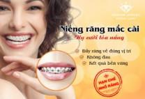 Cảnh báo: Đừng ham làm máng răng giá rẻ khi niềng răng!