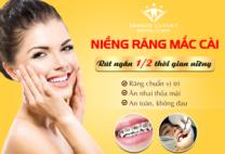 Giải pháp niềng răng nhanh – Hiệu quả – an toàn cho răng đều đẹp như ý