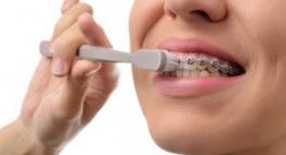 Đừng bỏ qua chia sẻ: Cách chăm sóc răng miệng sau khi niềng răng