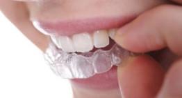 Giá niềng răng Invisalign bao nhiêu tiền? <<< Bảng giá chuẩn nhất năm