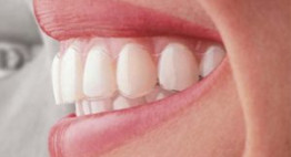 Ưu điểm vượt trội của niềng răng vô hình – Bạn không tin nhưng đó là sự thật