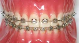 [Giải đáp] – Dịch vụ niềng răng mắc cài kim loại như nào? – Bs nha khoa