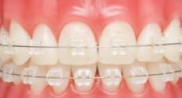 Bác sĩ giúp bạn trả lời những câu hỏi về niềng răng mắc cài sứ thẩm mỹ