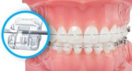 Các loại mắc cài niềng răng hiện nay – Phương pháp chỉnh nha cho bạn