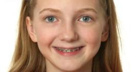 Niềng răng cho trẻ em – Tất cả vì nụ cười khỏe mạnh của trẻ