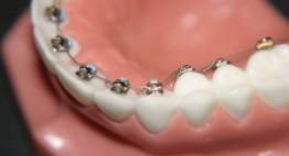 Bạn đã biết phương pháp niềng răng mắc cài mặt trong? Đọc ngay <<<