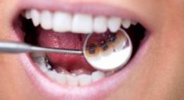 Niềng răng mất bao lâu để đều đẹp – Thời gian cho từng đối tượng