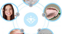 Tìm hiểu quy trình niềng răng móm chi tiết đạt chuẩn Bộ Y Tế