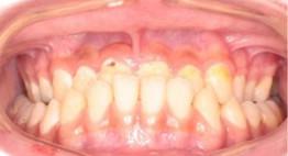 Niềng răng móm >>> Giải pháp giúp răng đều đẹp, bảo tồn răng thật 100%