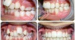 Hình ảnh kết quả niềng răng đáng kinh ngạc