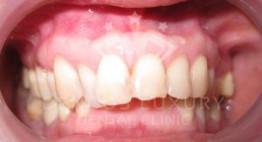 Răng hơi hô có nên niềng răng không? [Bật mí kinh nghiệm]