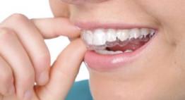Khách hàng đánh giá về dịch vụ niềng răng tại Dencos Luxury
