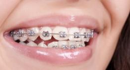 Giải đáp của chuyên gia: Niềng răng có đau không?