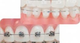Chi phí niềng răng sứ bao nhiêu tiền là hợp lý? Bảng giá chuẩn nhất