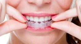 Niềng răng tháo lắp – Hiệu quả cao, tiện lợi, thẩm mỹ