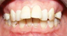 Răng hô móm nhẹ: Nên niềng răng hay bọc răng sứ?