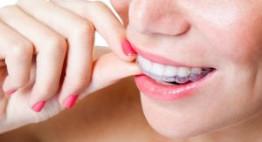 Video niềng răng không mắc cài Invisalign