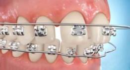 Bị tuột mắc cài trong khi Niềng Răng? Mách bạn cách xử lý TỐT nhất