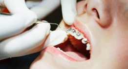 Tìm lời đáp cho câu hỏi: Niềng răng 1 hàm có được không?