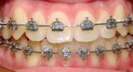 Tiết lộ với bạn: Niềng răng giá rẻ nhất là bao nhiêu tiền?