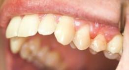 Chuyên gia giải đáp niềng răng hô có cần nhổ răng không?
