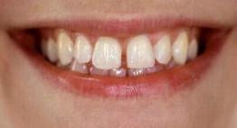 Niềng răng thưa và hô mang lại khuôn hàm đều đẹp, khít sát