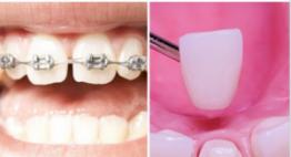Giải mã thắc mắc: Răng thưa nên niềng răng hay bọc răng sứ?