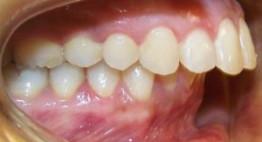 Đừng quá lo lắng làm gì để răng hết hô với các phương pháp hiệu quả