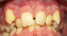 Bí quyết để niềng răng mọc lệch lạc NHANH CHÓNG – NHẸ NHÀNG