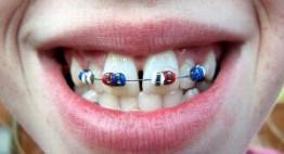 Niềng 2 răng cửa hết bao nhiêu tiền, liệu bạn đã biết chính xác?