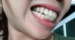 Hỏi – Đáp chuyên gia: 30 tuổi có nên niềng răng không?
