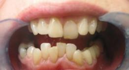 Niềng răng hàm tháo lắp có hiệu quả ở người trưởng thành không?