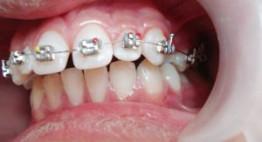 Răng cửa hô và thưa phải làm sao? – Chuyên gia tư vấn