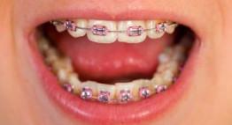 Niềng răng bao nhiêu lâu? – Thời điểm niềng thích hợp nhất.
