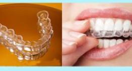 Tự niềng răng ở nhà HIỆU QUẢ & AN TOÀN với các bí quyết từ nha sĩ