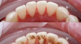 Cạo vôi răng có tốt không? – Những lợi ích & tác hại bạn nên biết