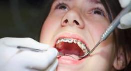 Có nên niềng răng khi chưa mọc đủ răng trưởng thành không?