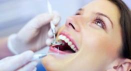 Mục đích của việc lấy cao răng để làm gì?