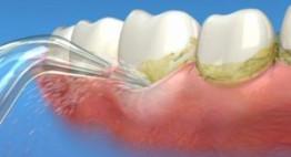 Lấy cao răng có trắng răng không? [Chuyên gia giải đáp]
