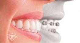 Tất tần tật quá trình niềng răng không mắc cài Invisalign tại Nha khoa Quốc tế Dencos Duxury