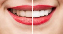 Tẩy trắng răng bằng máng bao lâu? – Tư vấn cùng chuyên gia