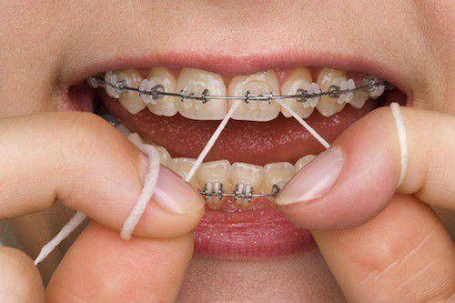 cách chăm sóc răng miệng khi niềng răng 3