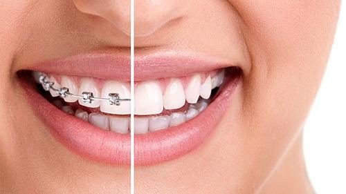 lợi ích của việc niềng răng 2