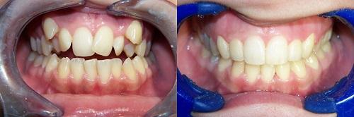 lợi ích của việc niềng răng 6