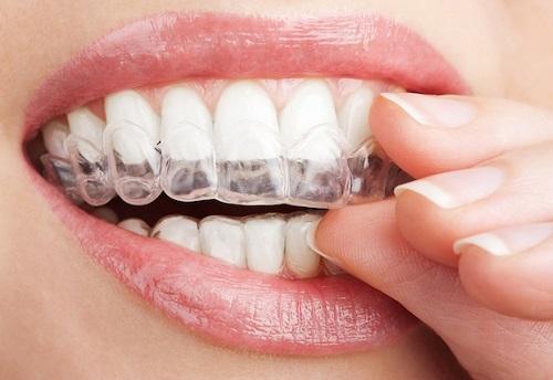 niềng răng invisalign tại Hà Nội