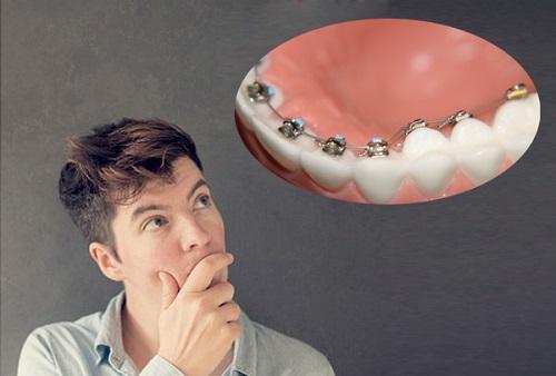 có nên niềng răng không