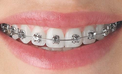 có nên niềng răng không 3