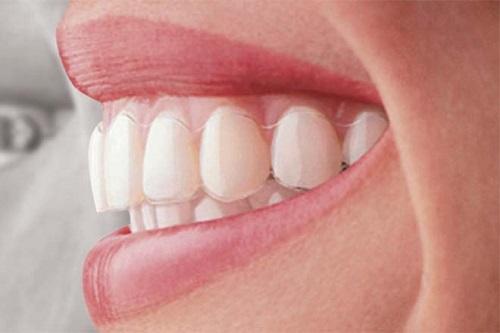 niềng răng vô hình