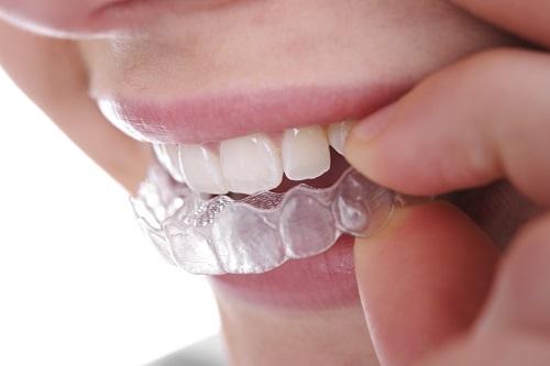 niềng răng vô hình 3